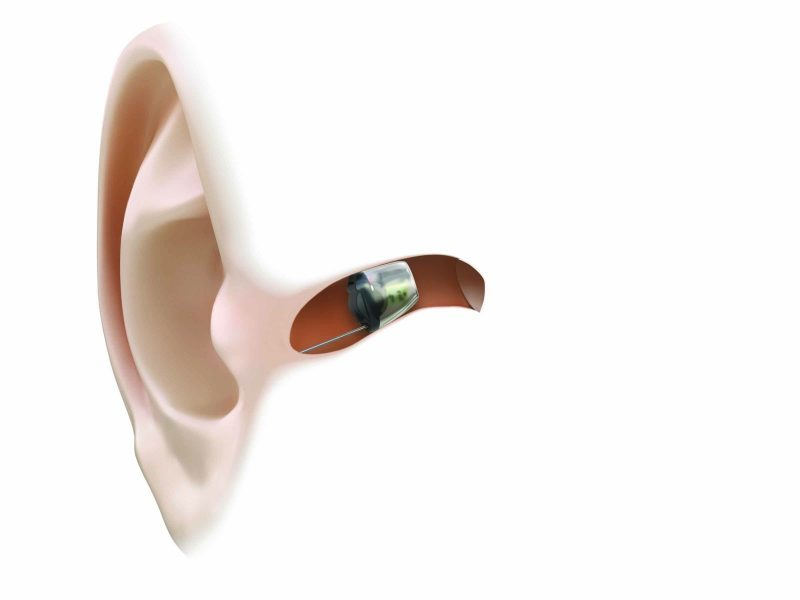 سمعک نامرئی کاملا داخل مجرای گوش قرار می گیرد و از بیرون دیده نمی شود.
