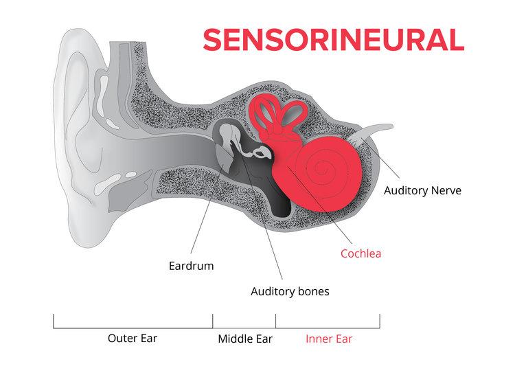 کم شنوایی حسی عصبی چیست؟