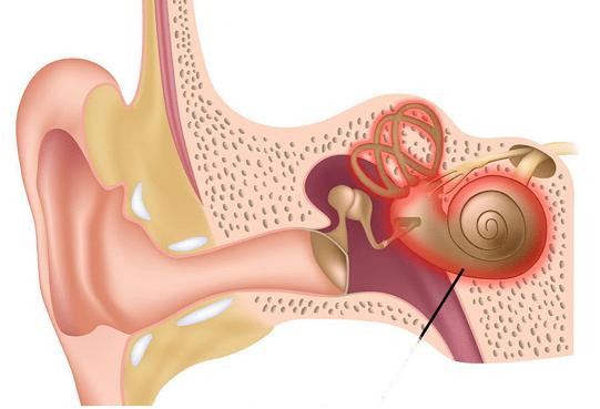 التهاب گوش داخلی