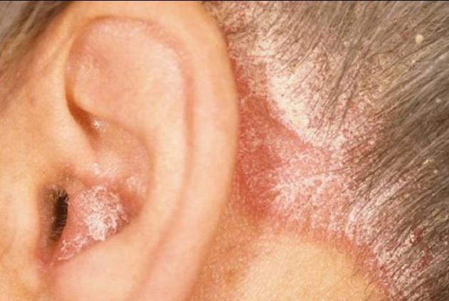پسوریازیس گوش